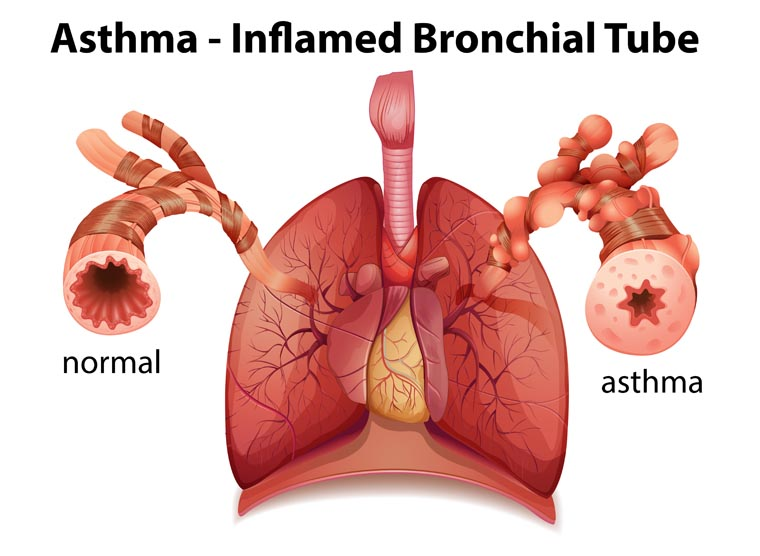 the impact of asthma on the respiratory system its causes and treatment