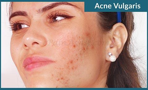 акне лечение препараты, лечение акне +на лице, лечение акны, прыщ лечение, стандарт лечения акне, угревой сыпь лечение