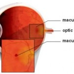 Лечение макулярного разрыва