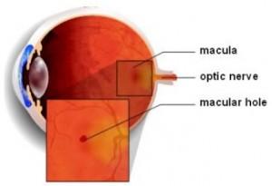 макулярный разрыв лечение, макулярный разрыв сетчатки, макулярный разрыв, макулярный разрыв операция, макулярный разрыв после операции