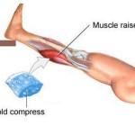 Лечение мышечных повреждений у спортсменов