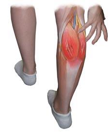 Лечение мышечных повреждений, мышечная травма лечение