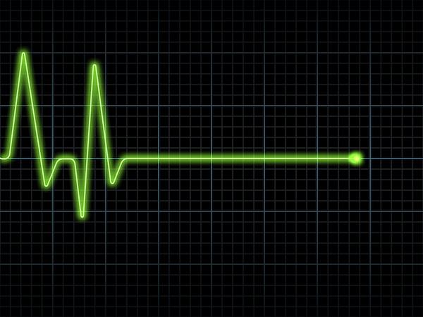 внезапная сердечная смерть, профилактика внезапной сердечной смерти, внезапная сердечная смерть причины, риск внезапной сердечной смерти