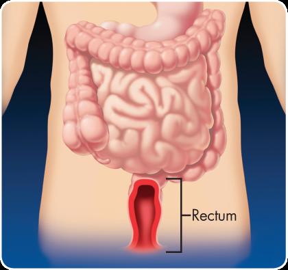 проктит кишечника симптомы, проктит, проктит лечение, проктит симптомы, проктит симптомы +и лечение