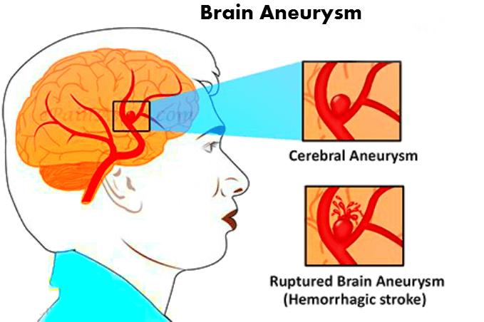 аневризма головного мозга последствия, разрыв аневризмы головного мозга, аневризма головного мозга, аневризма сосудов головного мозга, аневризма головного мозга симптомы,