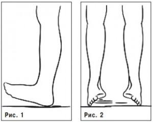 профилактика плоскостопия +у детей, лечение плоскостопия +у взрослых, лечение плоскостопия +у детей, причины плоскостопия, лечение плоскостопия, плоскостопие +у взрослых, упражнения +при плоскостопии