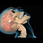 Особенности черепно-мозговой травмы у боксеров
