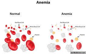 занятия спортом +при анемии, спорт +при анемии, железодефицитные анемии +у спортсменов,  анемия у спортсменов, железодефицитная анемия, гемоглобин, препараты железа