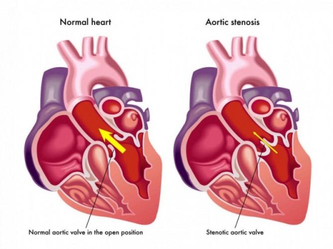 симптомы аортального стеноза, признаки аортального стеноза, аортальный стеноз мкб 10, стеноз аортального клапана, аортальный стеноз мкб, аортальный стеноз лечение, аортальный стеноз сердца