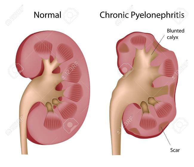 диагноз хронический пиелонефрит, лечить пиелонефрит, признаки хронического пиелонефрита, хронический пиелонефрит лечение, хронический пиелонефрит мкб, хронический пиелонефрит мкб 10, хронический пиелонефрит симптомы