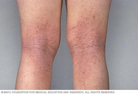 атопический дерматит лечение, атопический дерматит мкб, атопический дерматит симптомы, атопический дерматит симптомы +и лечение, атопический дерматит симптомы фото, атопический дерматит фото, диета +при атопическом дерматите