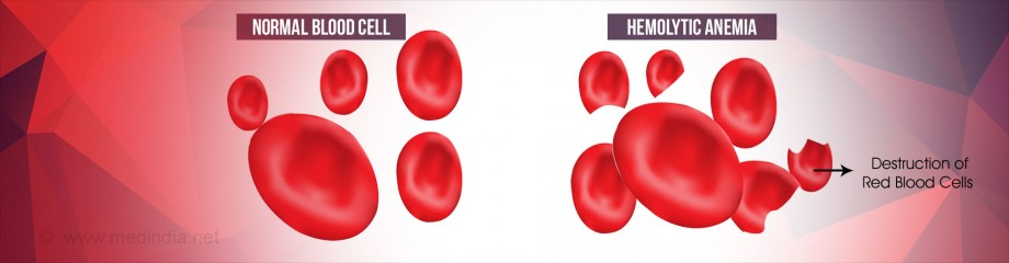 гемолитическая анемия код мкб, гемолитическая анемия минковского, гемолитическая анемия анализ, крови гемолитическая анемия, гемолитическая анемия лечение, гемолитическая анемия диагностика, гемолитическая анемия причины