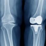 Реабилитация при эндопротезировании коленного сустава