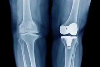 эндопротезирование коленного сустава реабилитация, реабилитация после эндопротезирования