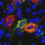 Мозг может вызвать ремиссию диабета у грызунов, но как?