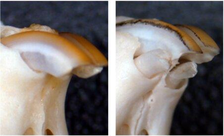 Новый препарат для восстановления утраченных зубов